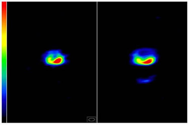 Вспышки на RS Змееносца, снимок сделан с интервалом в сутки