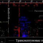 Наклонения объектов внешних областей Солнечной Системы (Кентавров, пояса Койпера и объектов рассеянного диска) ещё больше